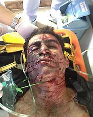 Uno degli attentatori a Bangkok perde le gambe