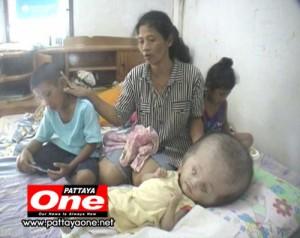 Bambino idrocefalo thailandese
